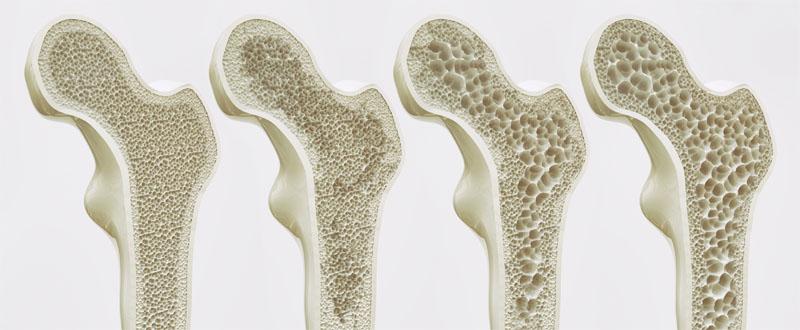 Knochenschwund
